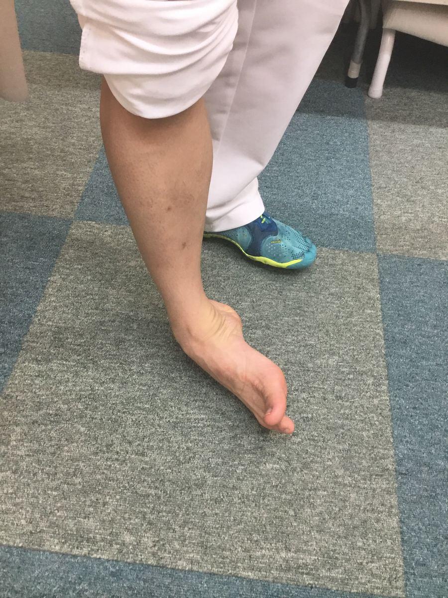 の 側面 痛い 足 が